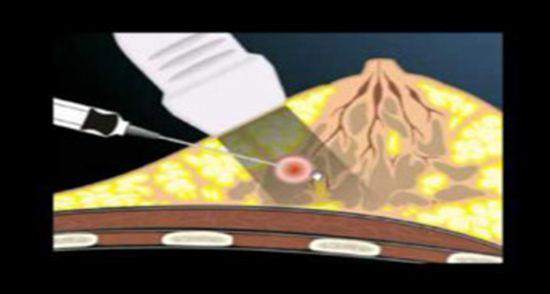 Biópsias e Punções