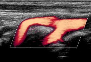 Ultrassonografia com Doppler Colorido